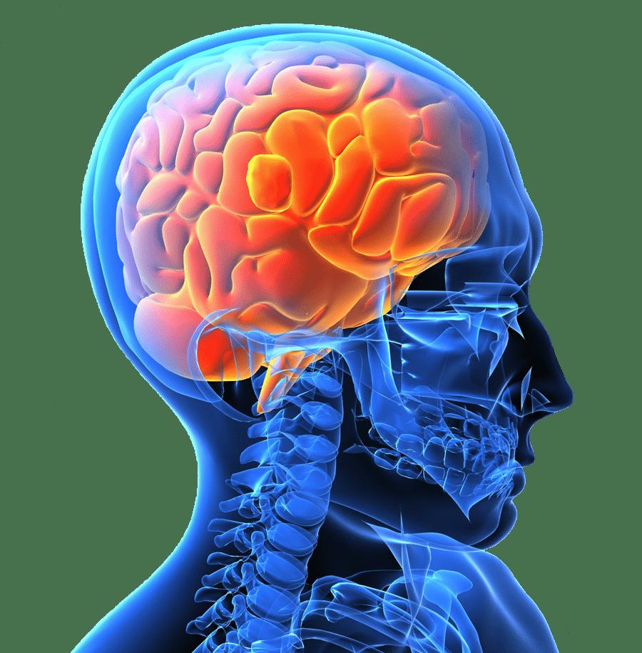 Livsstilsförändrande metod kan minska risken för stroke och ohälsa