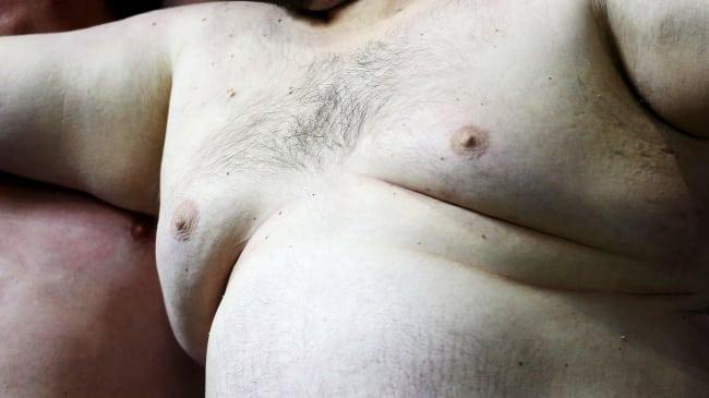 Trauma i barndomen kan ge fetma i vuxen ålder