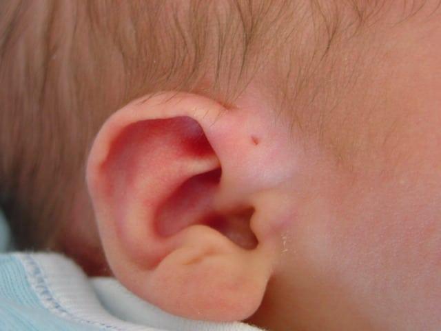 Mer än var tionde svensk har hörselproblem