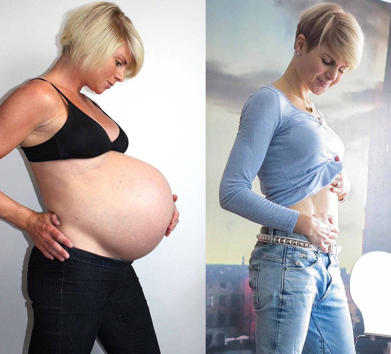 Anna Lissjanis - gravid och efter rectus diastasoperation